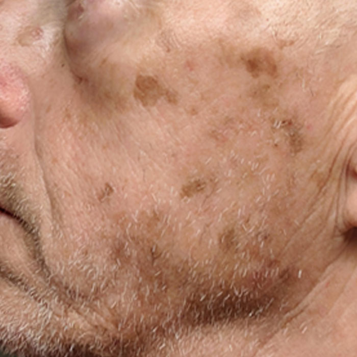 CELL-REPAIR-SERUM-BEFORE-AND-AFTER-2-WEEKS